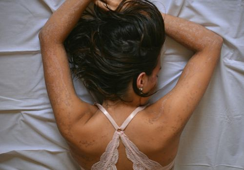 Woman suffering from skin disease lying on bed