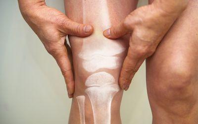 Man holding knee interposed with image of leg bones