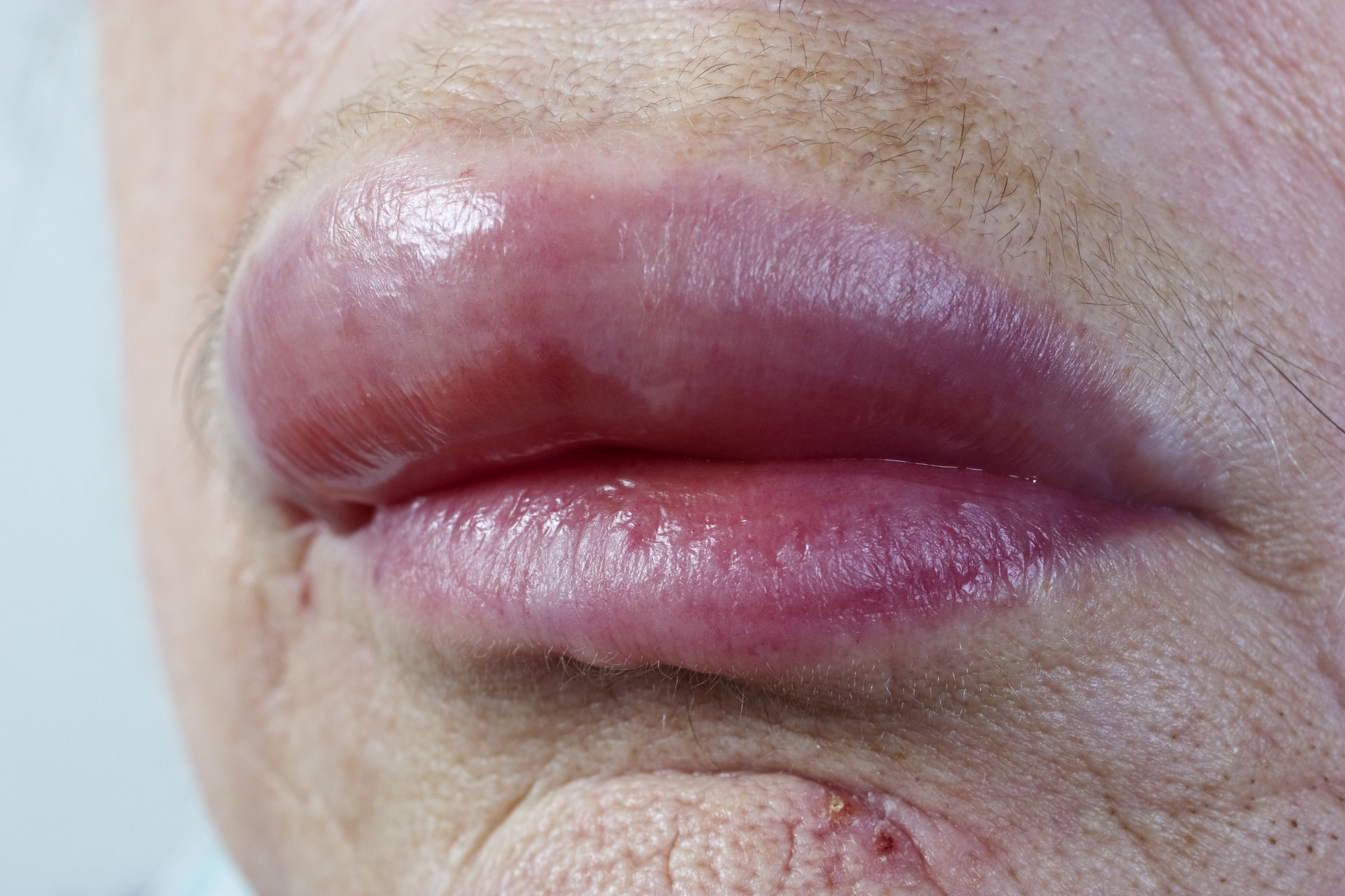 Oral Allergy Syndrome Symptoms And Treatment