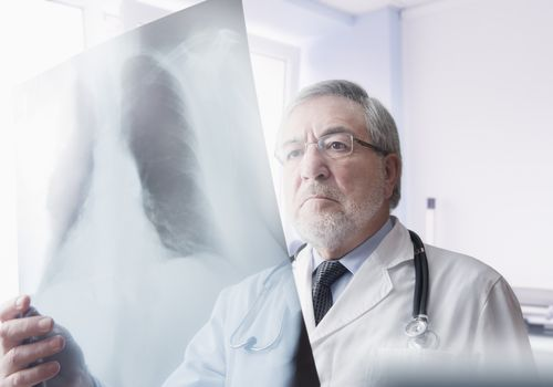 Doctor reading chest xrays