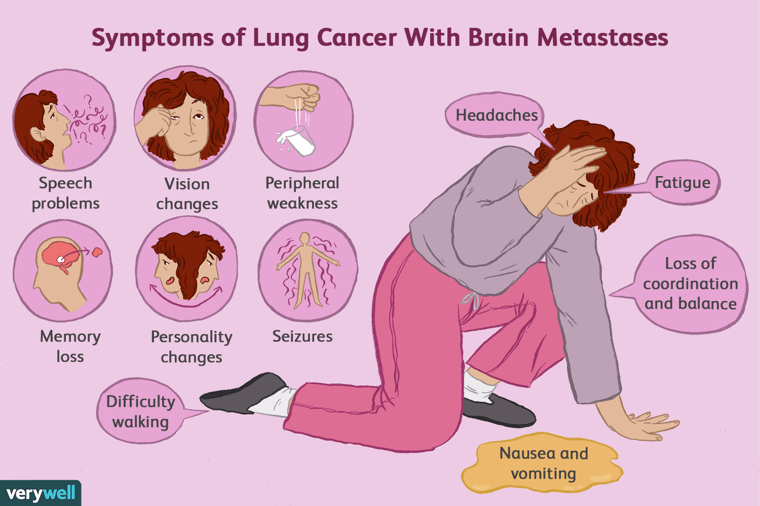 When Lung Cancer Spreads to the Brain. Symptoms ...