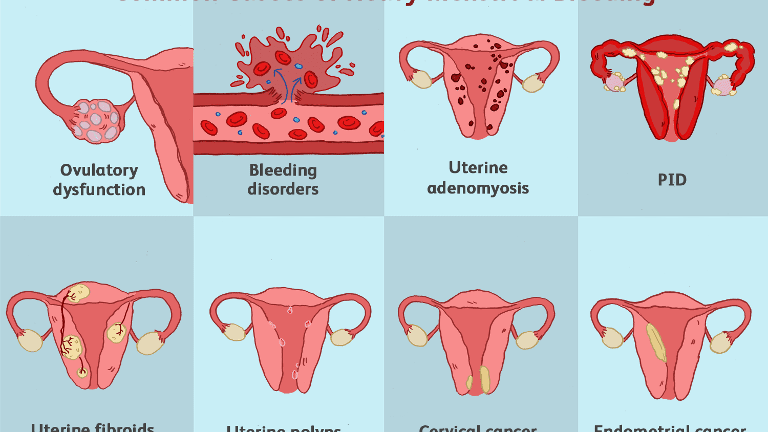 Common Conditions That Can Affect The Uterus
