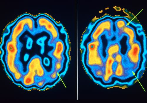 Images of Progression of Alzheimer's in Brain