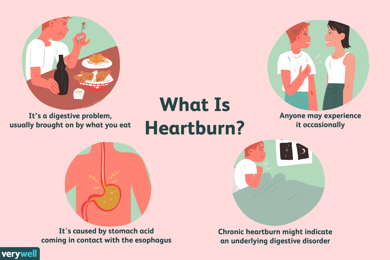 What is Heartburn?
