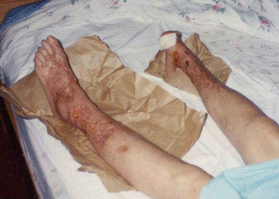 Tissue damage on feet of a person with diabetes