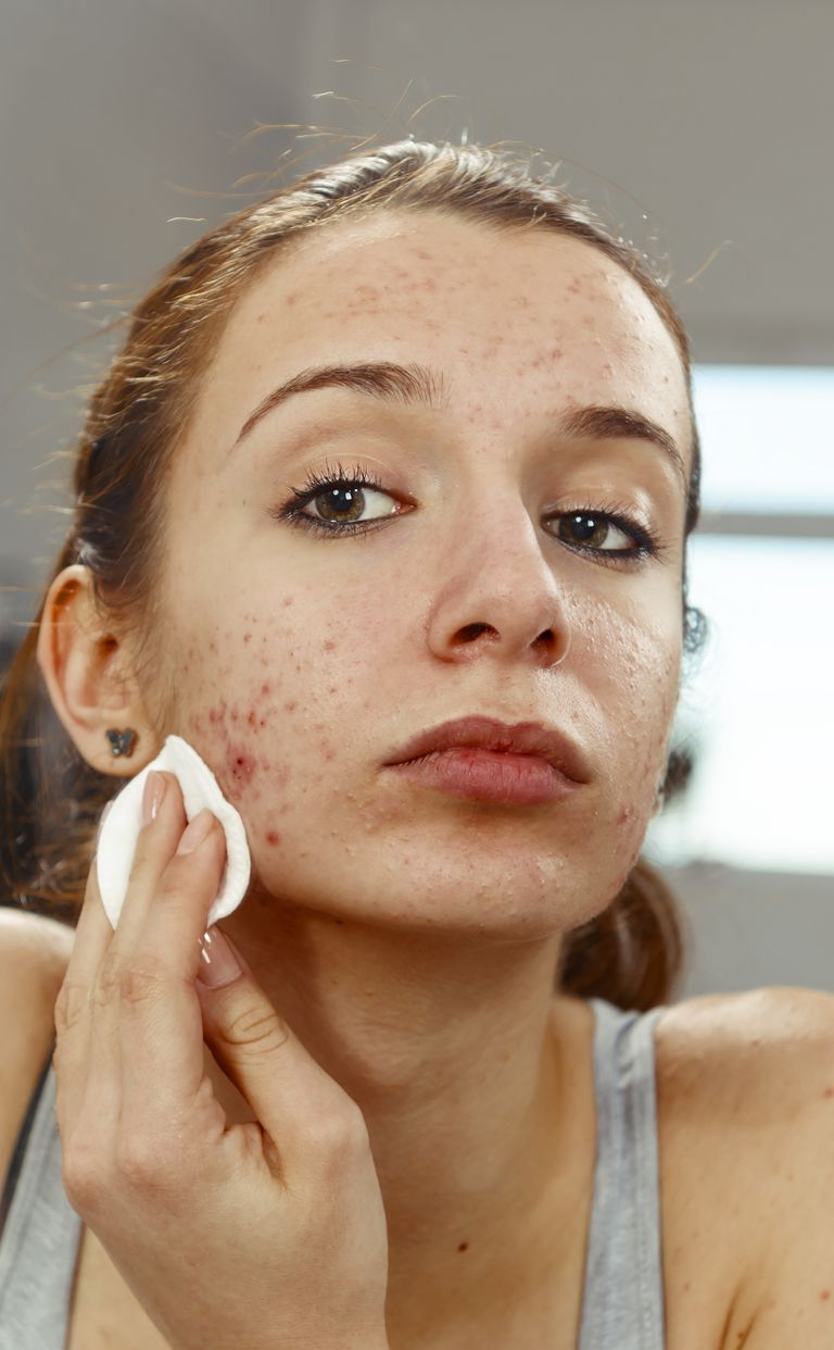 Young woman using a cleansing pad on her face.
