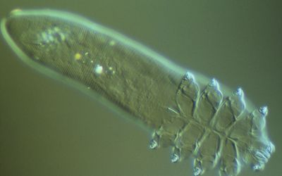 LM of Demodex folliculorum