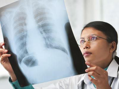Doctor looking at an X-ray of lungs