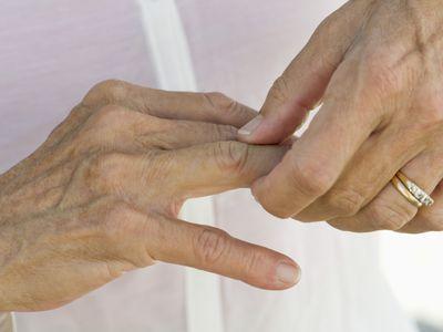 Senior woman rubbing knuckles