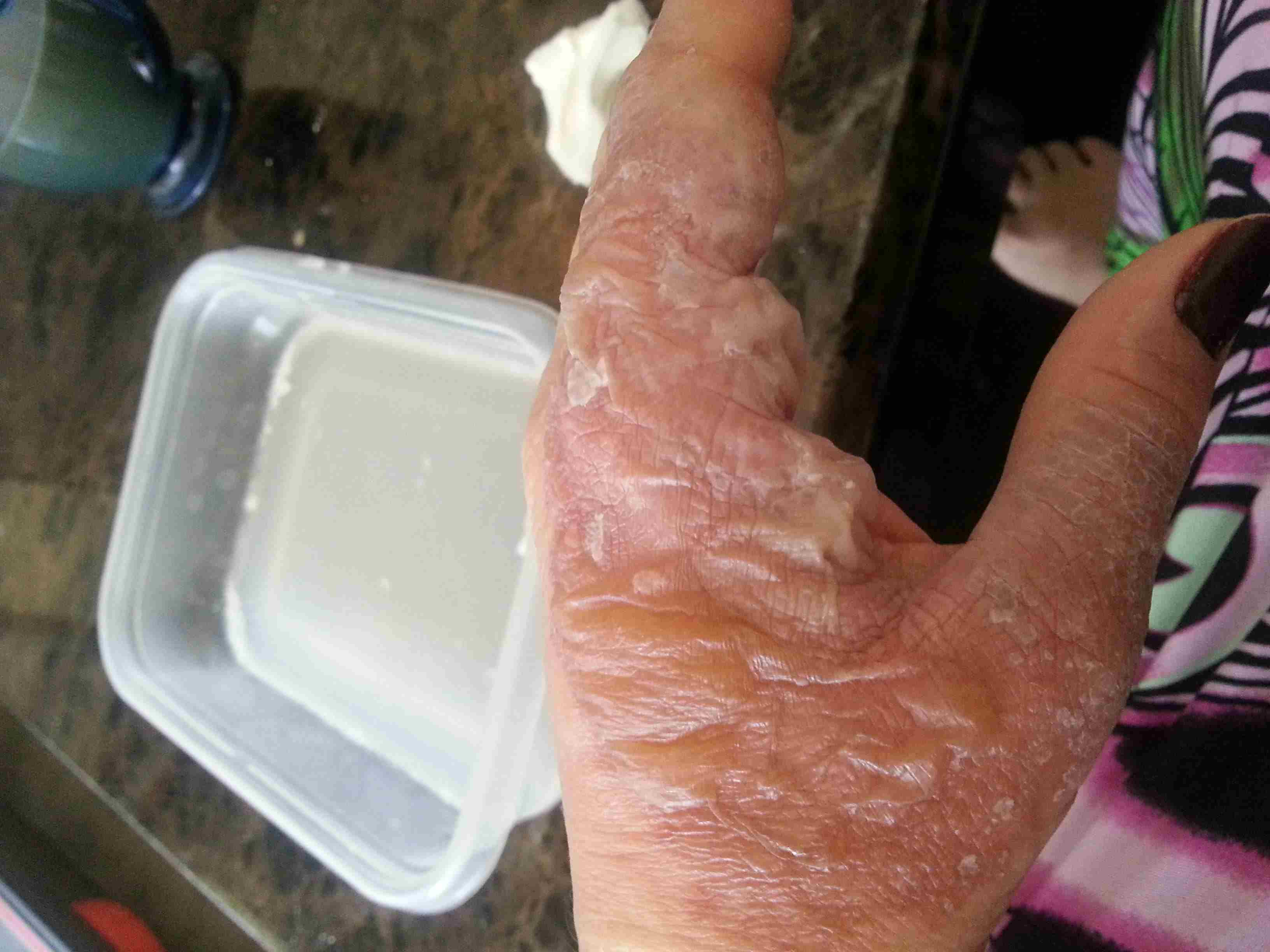 Degree burn waxing second from A Woman's