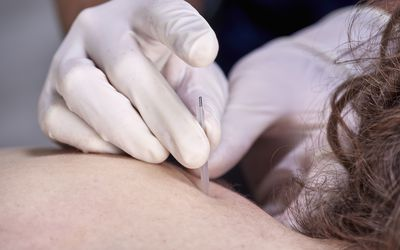 Dry needling being performed on a woman's back