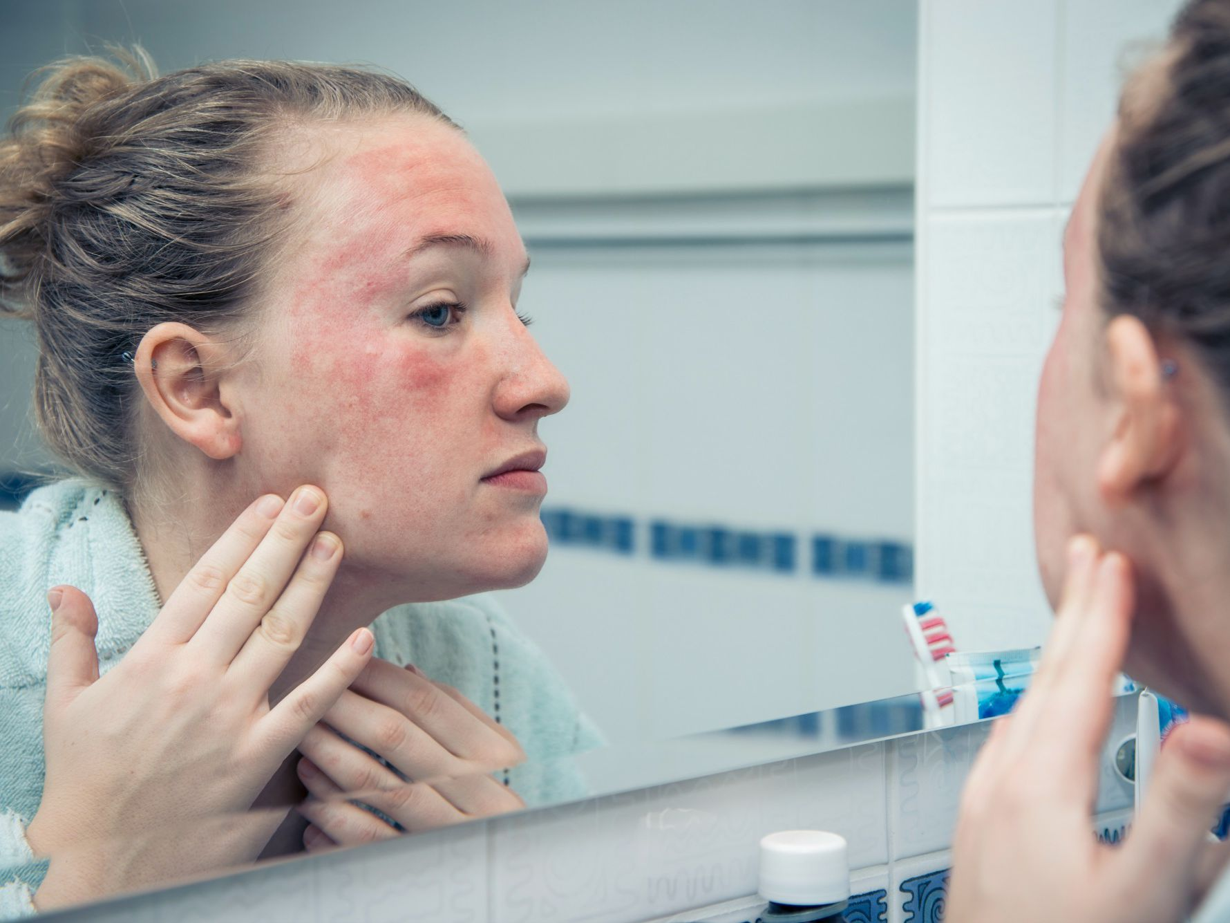 Benzoyl Peroxide Allergy Symptoms