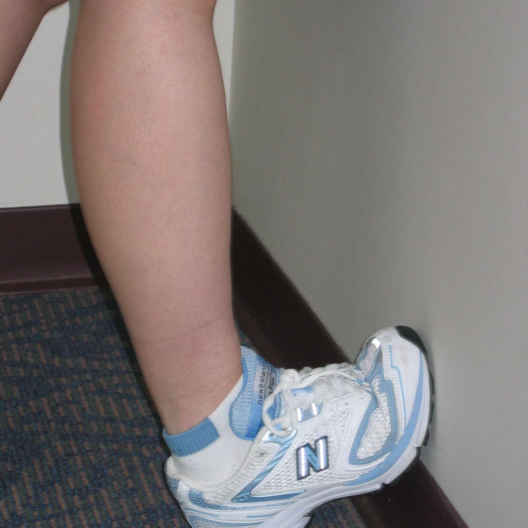 Standing ankle dorsiflexion stretch against wall.