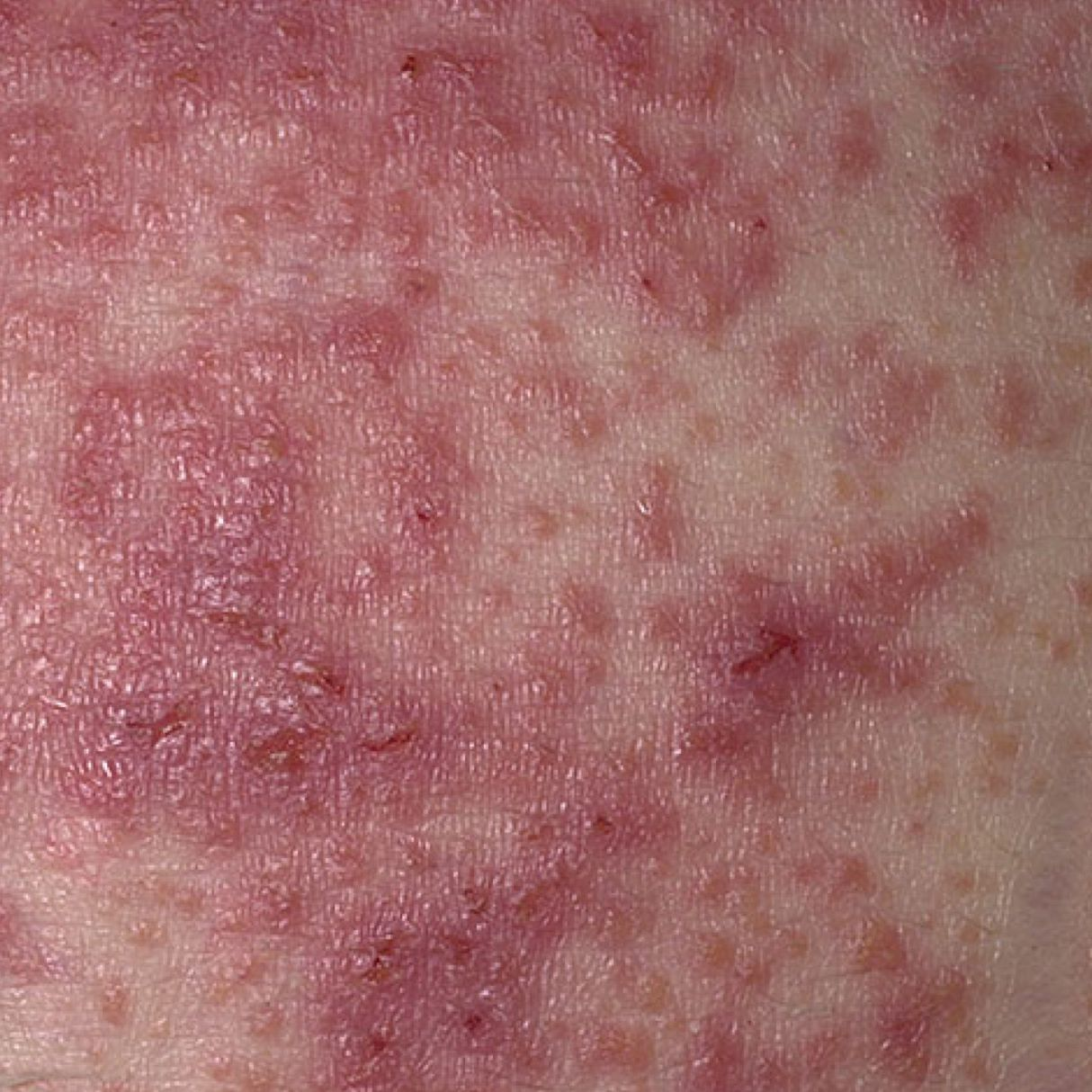 Dermatitis Herpetiformis (Celiac Disease Rash) Photos