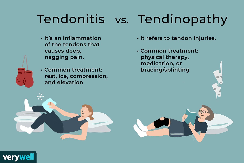 Tendonitis vs. Tendinopathy