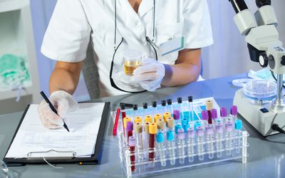 lab testing blood and urine