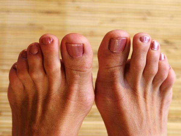 Close-up of woman's feet with hammertoes