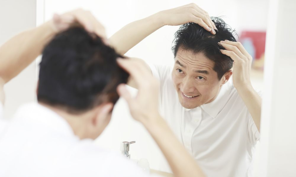 Asian man looking at thinning hair in mirror