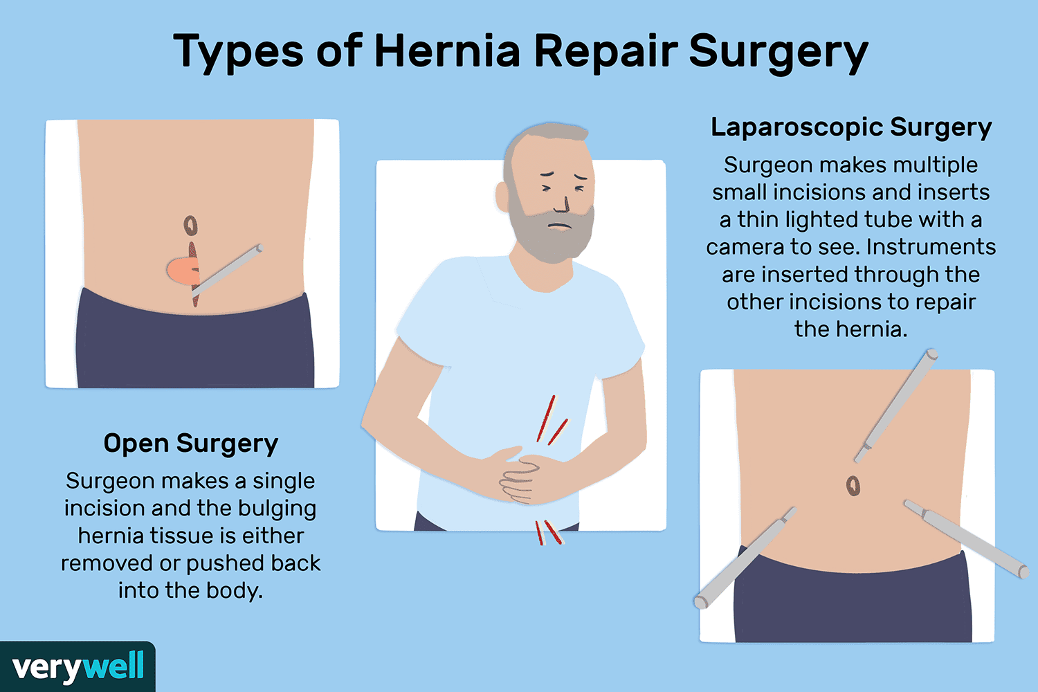 Hernia Repair Surgery Overview