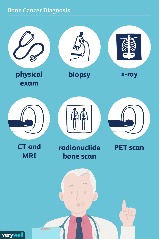 bone cancer diagnosis