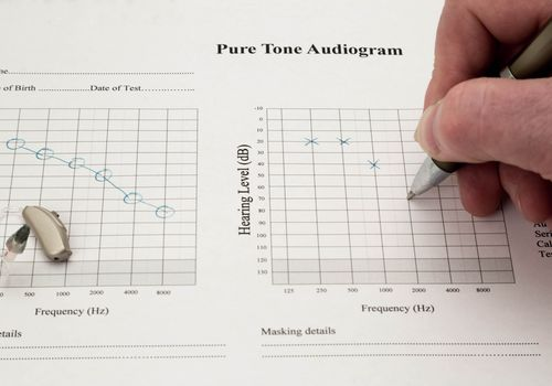 Audiogram being marked.