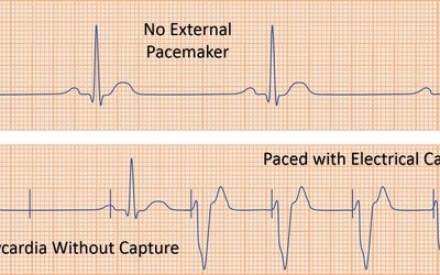 Pacemaker Replacement Due to Low Battery