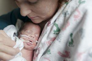 Premature Baby in NICU