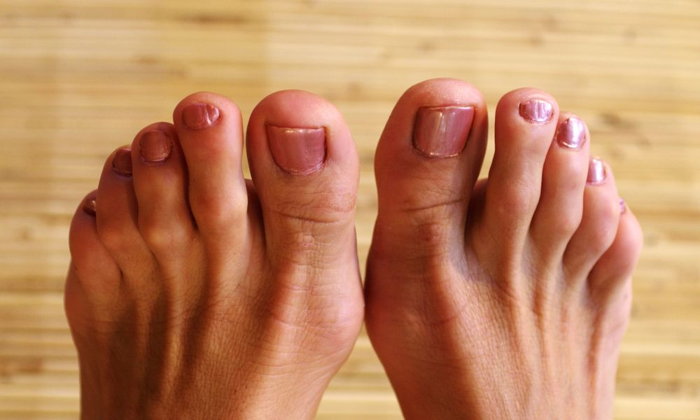 woman's feet with hammer toes
