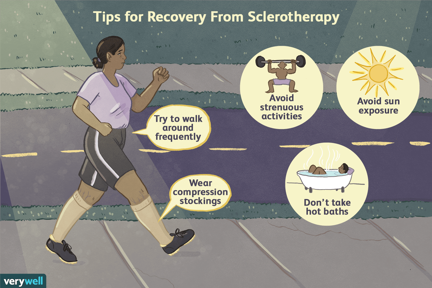 recovering from sclerotherapy