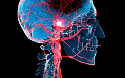 Stroke: Symptoms, Causes, Diagnosis, and Treatment