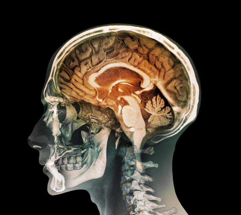 Coloured composite image of a magnetic resonance imaging (MRI) scan of the brain and 2D and 3D computed tomography (CT) scans of the head and neck of a 35 year old patient