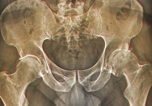 An X-ray showing hip arthritis.