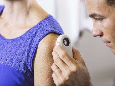 Dermatologist examining patient looking for skin cancer