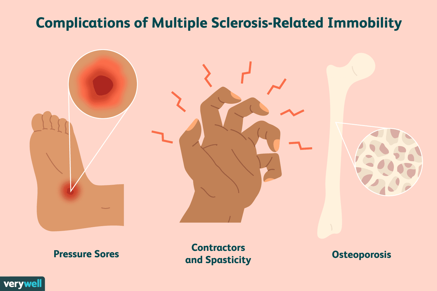 Sores, Contractures, and Osteoporosis Due to MS Immobility