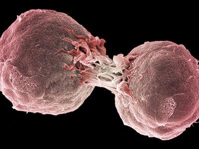 Dividing lymphoma cancer cells