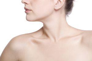 hives, urticaria, chronic hives, thyroid, hypothyroidism, autoimmune, autoimmunity