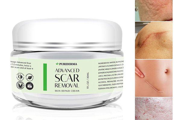 Puriderma Scar Removal Cream