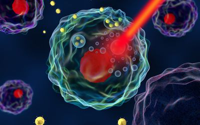 Nanotechnology hyperthermia for cancer illustration