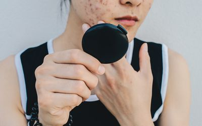 An Asian girl looks at severe acne on her cheek in a compact mirror.