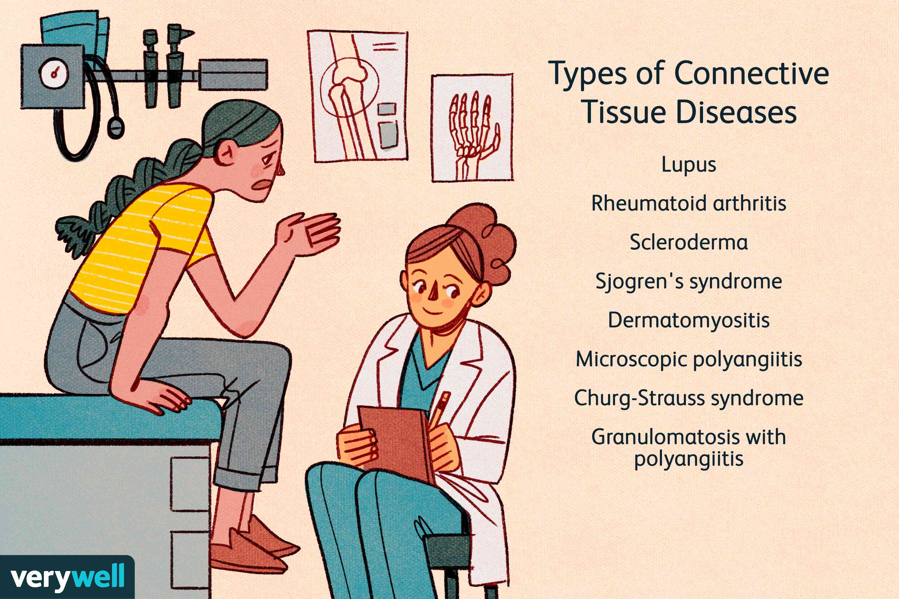 Types of Connective Tissue Diseases