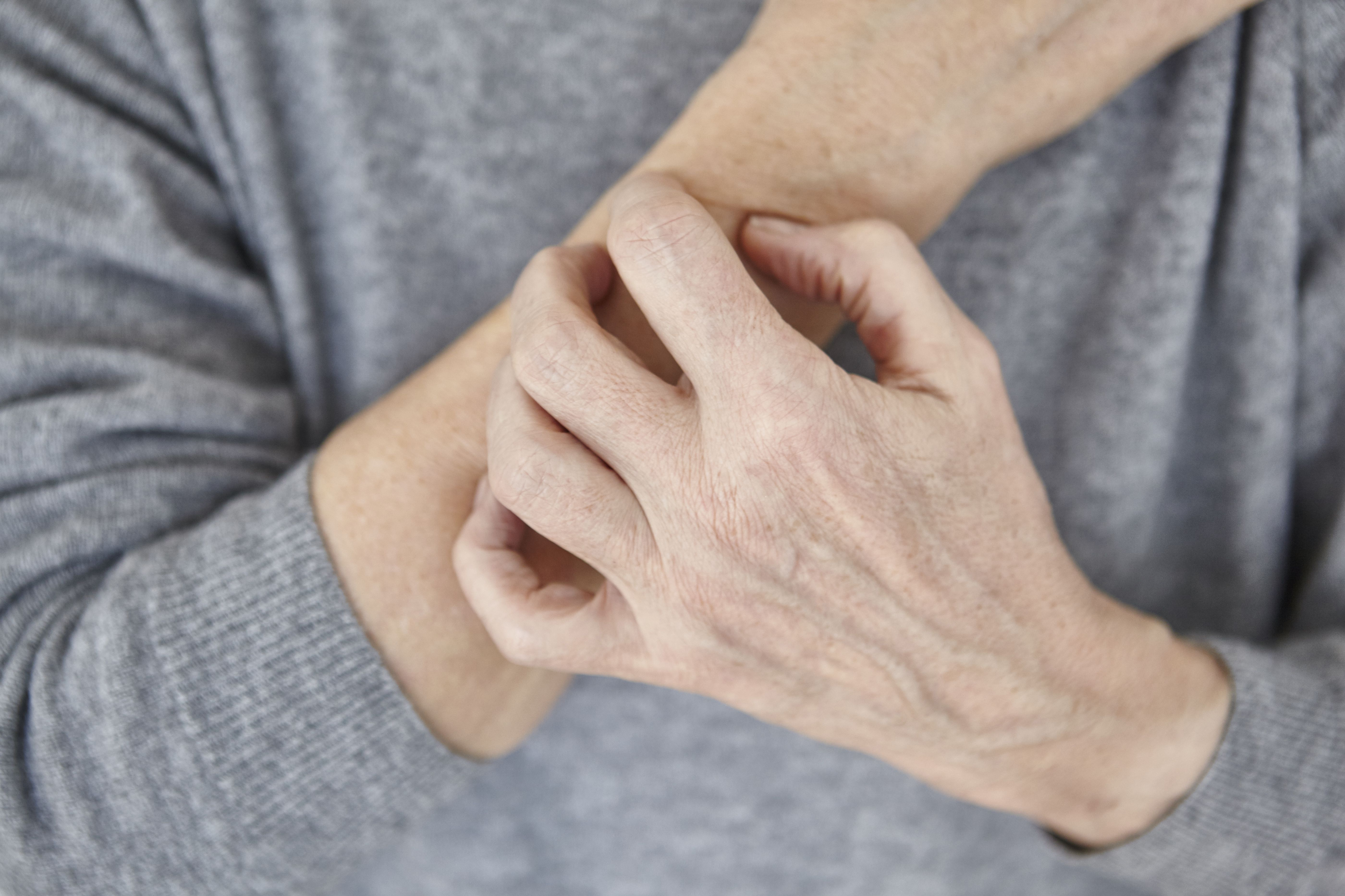 Scabies: Signs, Symptoms, and Complications