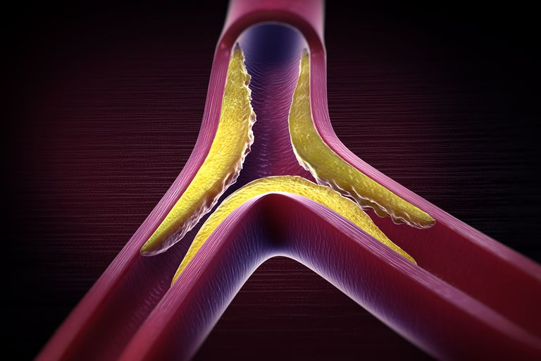 An illustration depicting atherosclerosis.