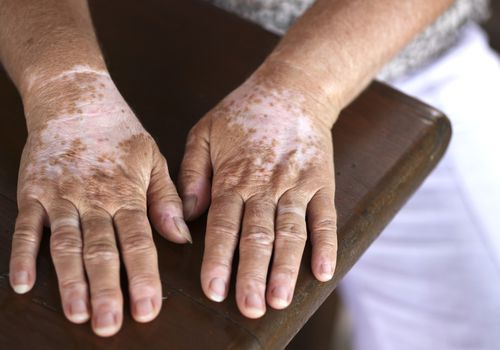 older woman's hands with splotchy white marks