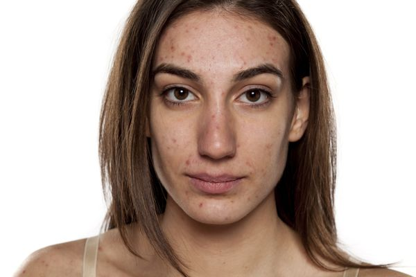 Young woman with acne - living with acne