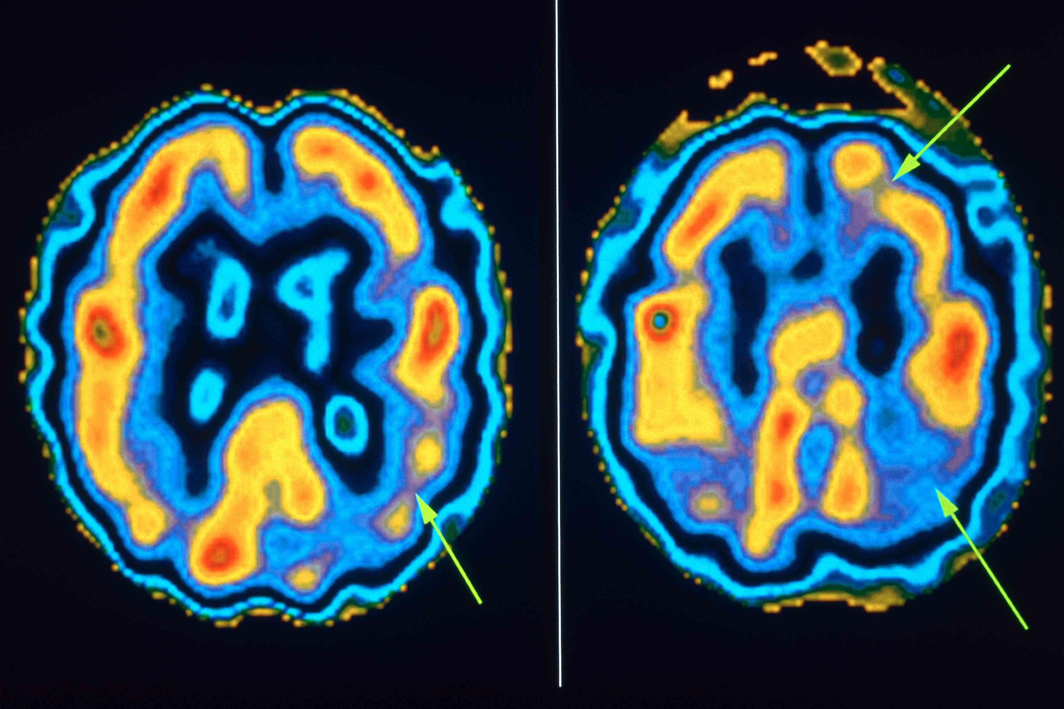 Medical imaging of progression of Alzheimer's in brain