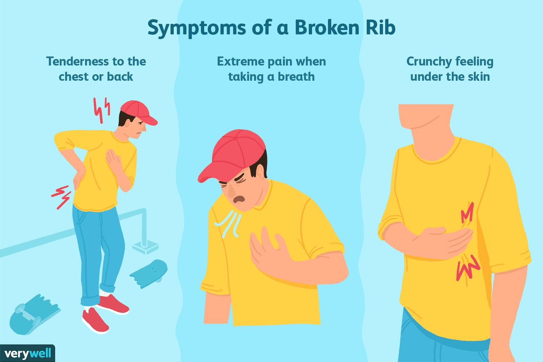 Symptoms of broken ribs