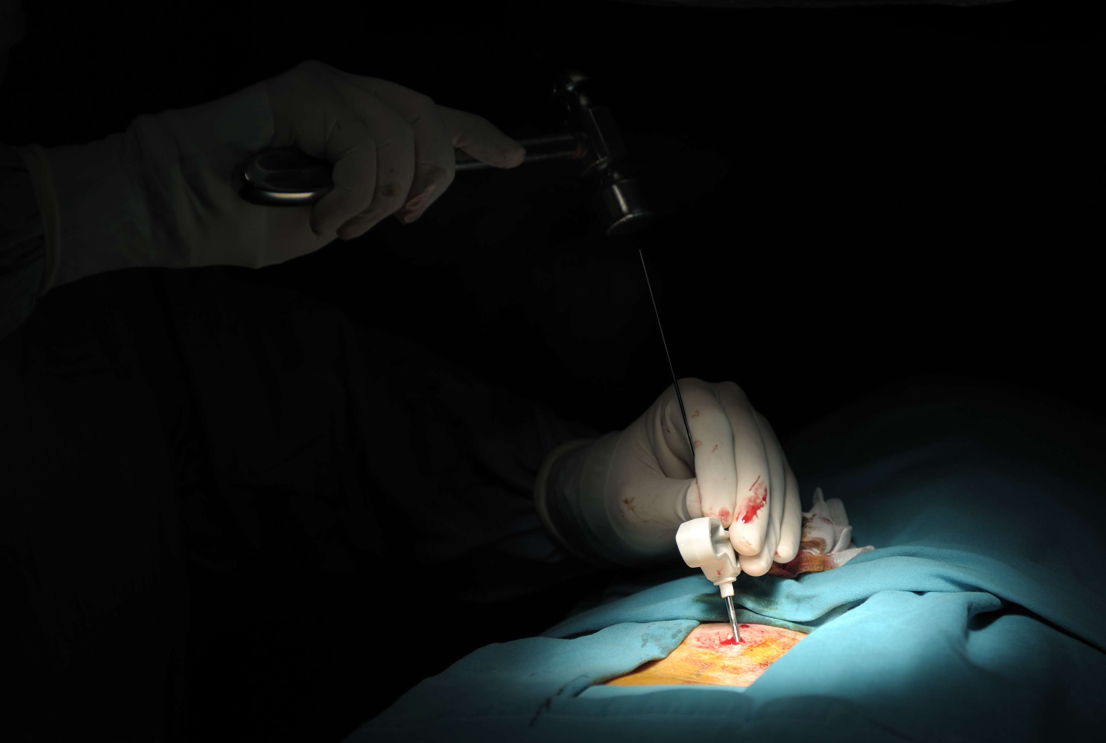 Surgeons hands operating on a patient