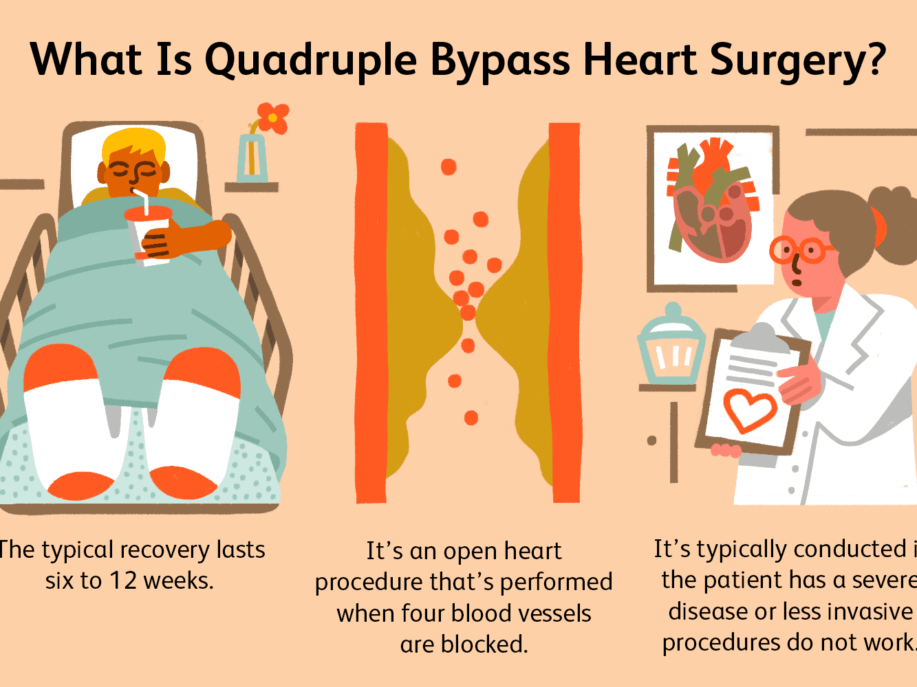 Quadruple Bypass Heart Surgery Process And Recovery