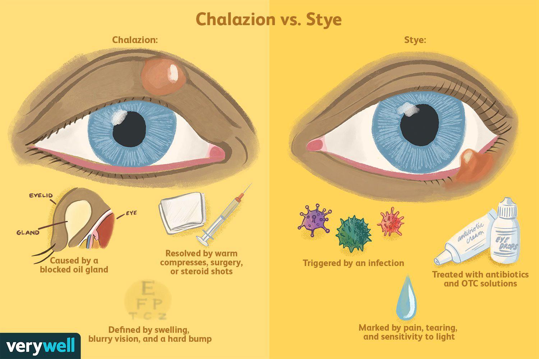 Chalazion vs. Stye