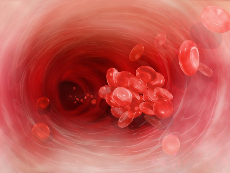 Illustration of a clump of blood cells in an artery